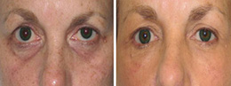 dark circles removal before and afters