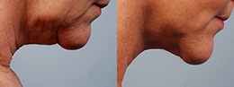 ultra neck lift before and afters