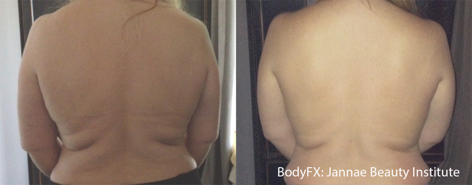 jbi_bodyfx_1a_back_1tx