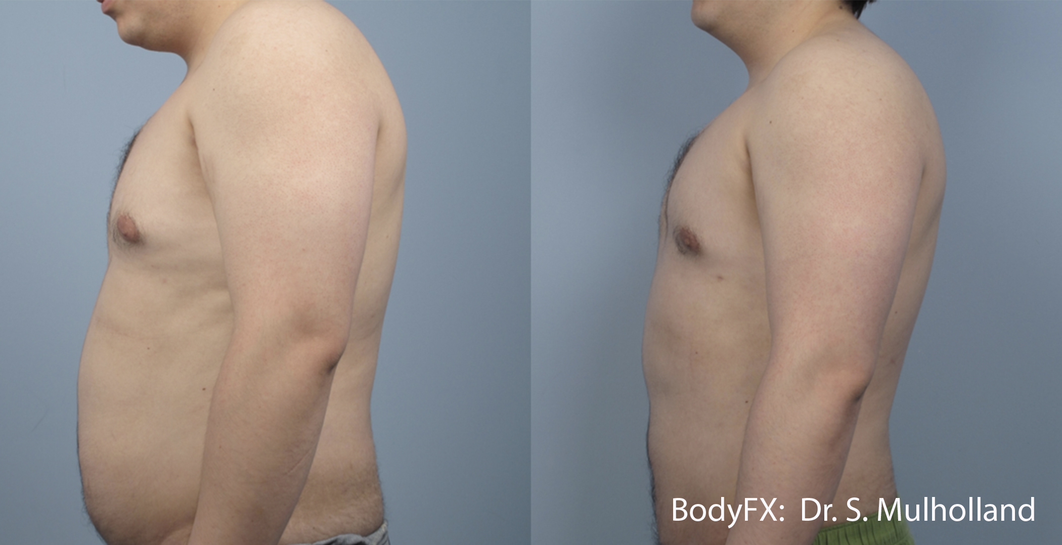 sm_bodyfx_5a_male_ls